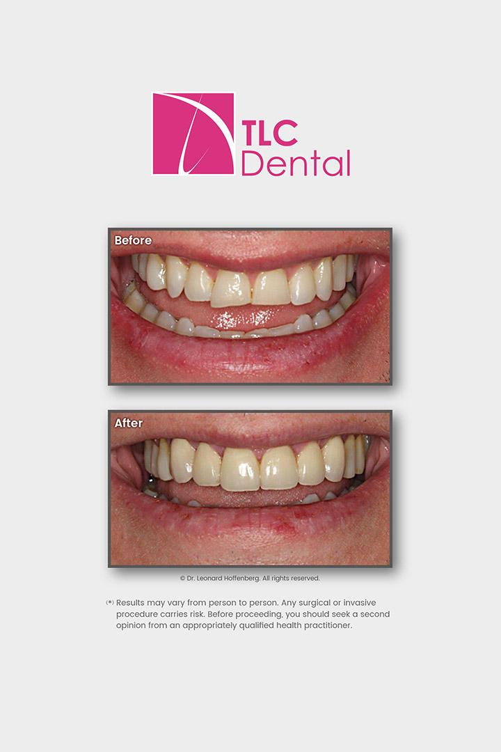 Orthodontic Treatment and Crowns